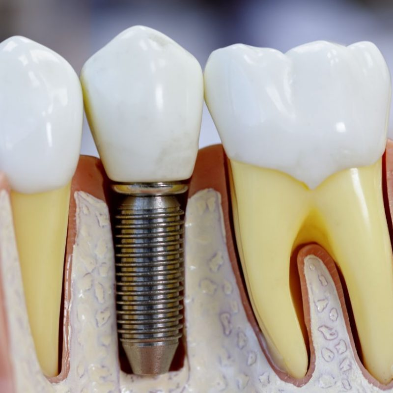 Close up of dental model with implantation
